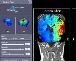 Soterix Neuro-Targeting Software